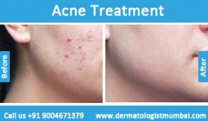 acne-treatment-before-after-photos-in-mumbai-india-1