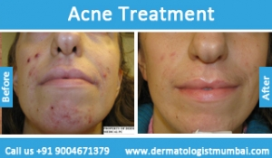 acne-treatment-before-after-photos-in-mumbai-india-4
