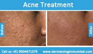 acne-treatment-before-after-photos-in-mumbai-india-5