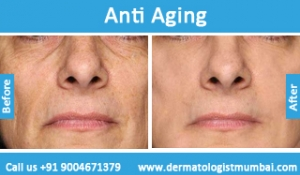 anti-aging-treatment-before-after-photos-in-mumbai-india-4