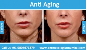 anti-aging-treatment-before-after-photos-in-mumbai-india-5
