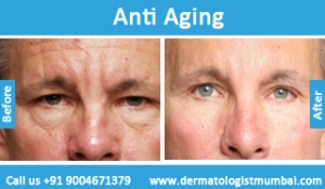 anti-aging-treatment-before-after-photos-in-mumbai-india-6
