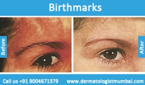 birthmarks-removal-treatment-before-after-photos-in-mumbai-india-4