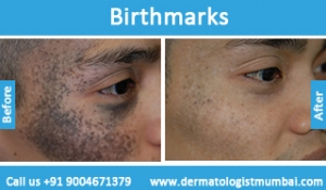 birthmarks-removal-treatment-before-after-photos-in-mumbai-india-5