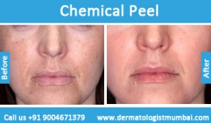 chemical-skin-peeling-treatment-before-after-photos-in-mumbai-india-1