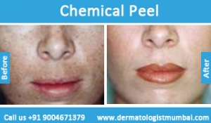 chemical-skin-peeling-treatment-before-after-photos-in-mumbai-india-2