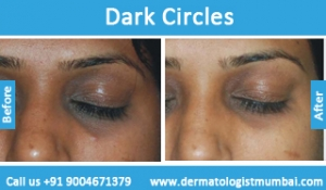 dark-circles-treatment-before-after-photos-in-mumbai-india-2
