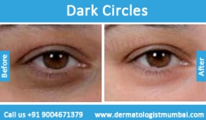 dark-circles-treatment-before-after-photos-in-mumbai-india-3