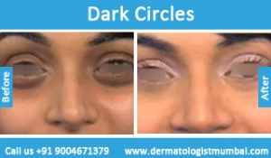 dark-circles-treatment-before-after-photos-in-mumbai-india-4