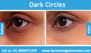 dark-circles-treatment-before-after-photos-in-mumbai-india-5