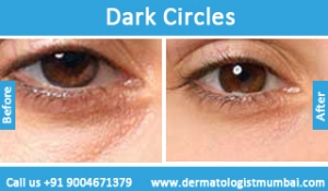 dark-circles-treatment-before-after-photos-in-mumbai-india-6