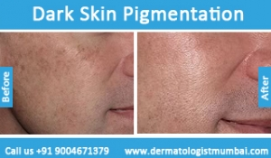 dark-skin-pigmentation-treatment-before-after-photos-in-mumbai-india-1