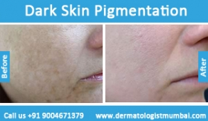 dark-skin-pigmentation-treatment-before-after-photos-in-mumbai-india-2