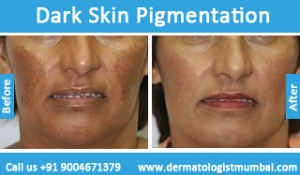 dark-skin-pigmentation-treatment-before-after-photos-in-mumbai-india-5