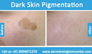 dark-skin-pigmentation-treatment-before-after-photos-in-mumbai-india-6