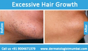 excessive-hair-growth-treatment-before-after-photos-in-mumbai-india-2