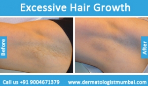 excessive-hair-growth-treatment-before-after-photos-in-mumbai-india-3