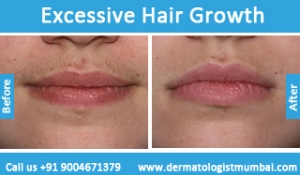 excessive-hair-growth-treatment-before-after-photos-in-mumbai-india-4