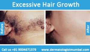 excessive-hair-growth-treatment-before-after-photos-in-mumbai-india-5