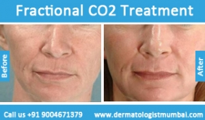 fractional-co2-laser-treatment-2