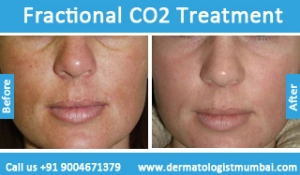fractional-co2-laser-treatment-3