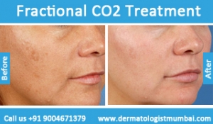 fractional-co2-laser-treatment-5