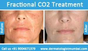 fractional-co2-laser-treatment-6