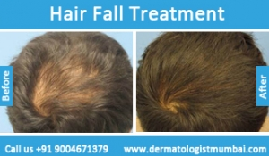 hair-loss-treatment-before-after-photos-in-mumbai-india-3