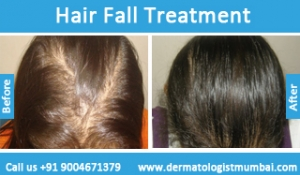 hair-loss-treatment-before-after-photos-in-mumbai-india-4