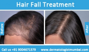 hair-loss-treatment-before-after-photos-in-mumbai-india-5