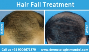 hair-loss-treatment-before-after-photos-in-mumbai-india-6