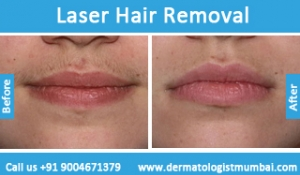 laser-hair-removal-treatment-before-after-photos-in-mumbai-india-4