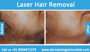 laser-hair-removal-treatment-before-after-photos-in-mumbai-india-6