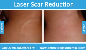 laser-scar-reduction-treatment-before-after-photos-in-mumbai-india-1