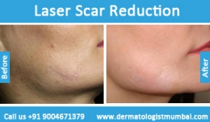 laser-scar-reduction-treatment-before-after-photos-in-mumbai-india-3