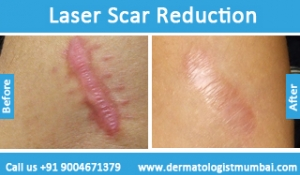 laser-scar-reduction-treatment-before-after-photos-in-mumbai-india-5