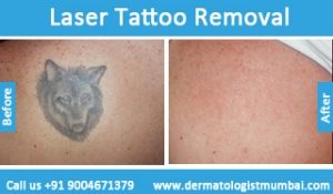 laser-tattoo-removal-treatment-before-after-photos-in-mumbai-india-2