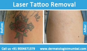 laser-tattoo-removal-treatment-before-after-photos-in-mumbai-india-6