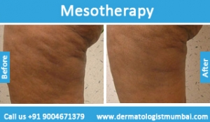 mesotherapy-treatment-before-after-photos-in-mumbai-india-3