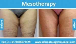 mesotherapy-treatment-before-after-photos-in-mumbai-india-4
