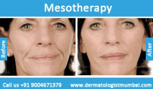 mesotherapy-treatment-before-after-photos-in-mumbai-india-5
