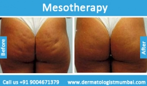 mesotherapy-treatment-before-after-photos-in-mumbai-india-6