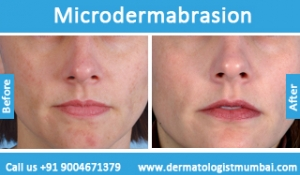 microdermabrasion-treatment-before-after-photos-in-mumbai-india-5