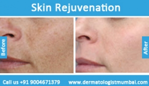 skin-rejuvenation-treatment-before-after-photos-in-mumbai-india-1