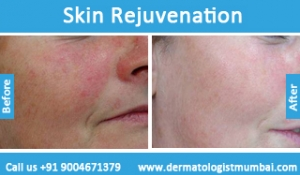 skin-rejuvenation-treatment-before-after-photos-in-mumbai-india-4