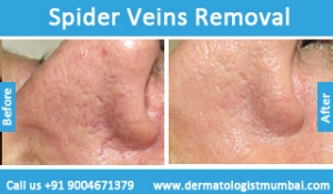 spider-veins-removal-treatment-before-after-photos-in-mumbai-india-5