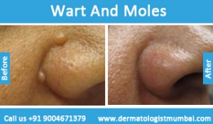 warts-and-moles-removal-treatment-before-after-photos-in-mumbai-india-3